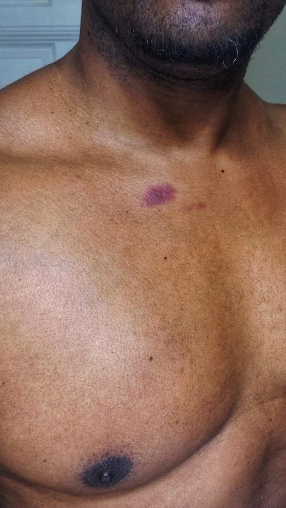 Guys with hickeys